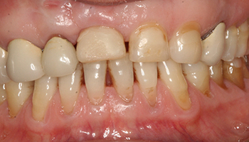 Yellow and worn teeth