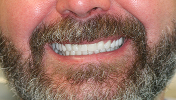 Man with straight healthy smile
