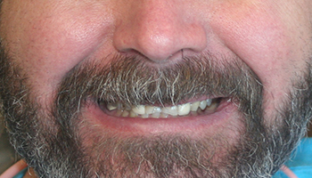 Man with front teeth tilted inward