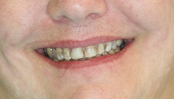 Severely decayed and discolored teeth