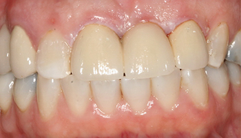 Gap between teeth closed