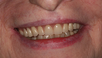 Healthy repaired smile