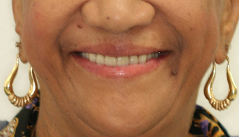 Smile with replaced top teeth