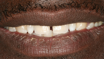 Closeup of flawlessly replaced top teeth