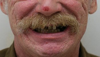 Man with damaged and missing teeth