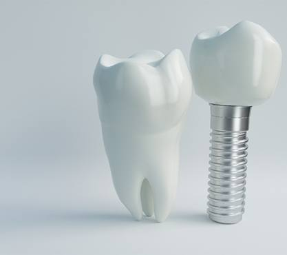 A tooth and dental implant next to each other