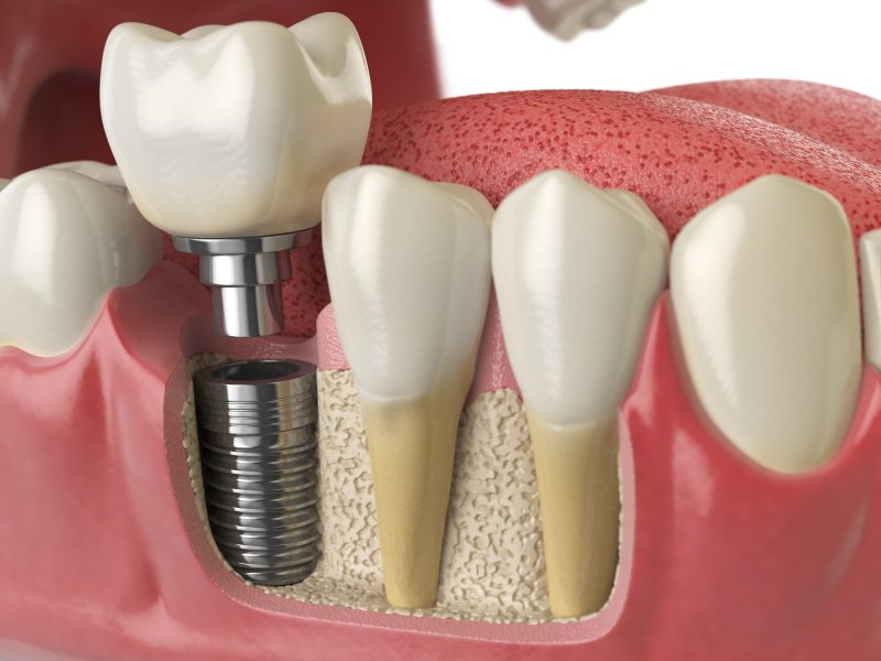 Illustration of dental implant in Richardson