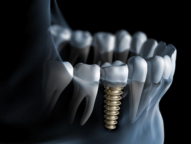 Dental implant digital image